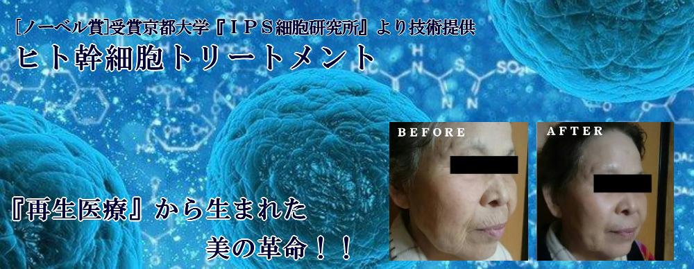 ヒト幹細胞トリートメント